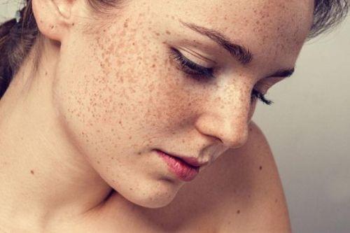 kahverengi lekeler için expigment krem nasıl uygulanır