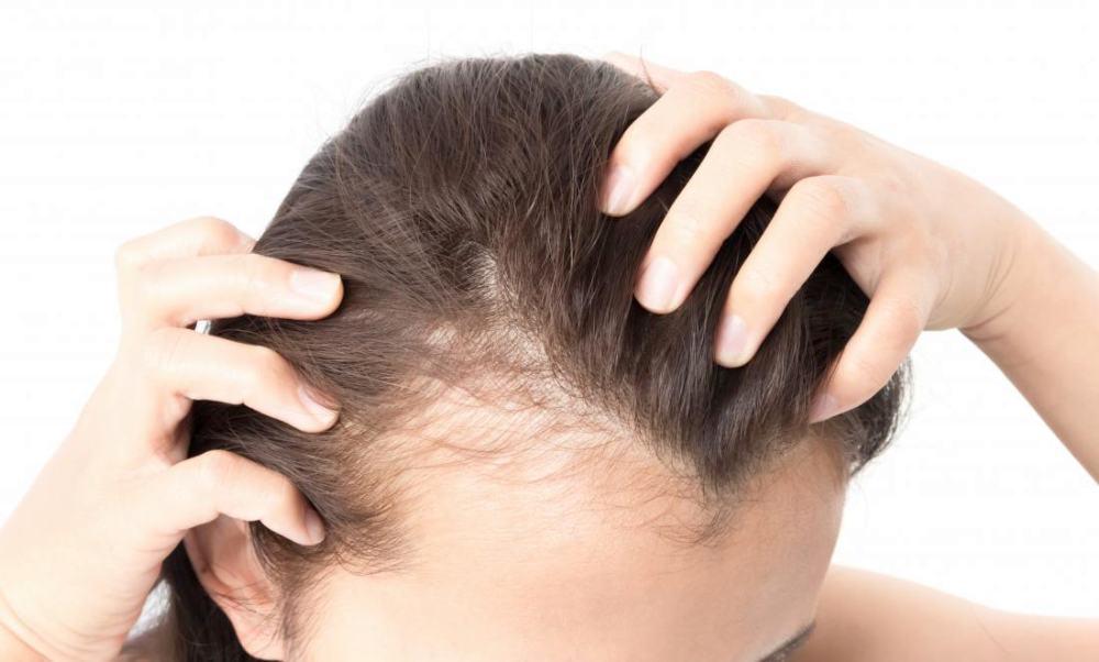 Kadınlarda Saç Dökülmesi Nasıl Önlenir? Nedenleri Tedavisi