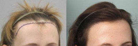 kadınlar için saç ekimi